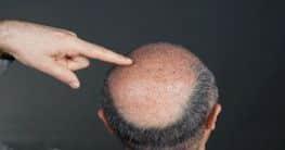 Weitere Formen des Haarausfalls
