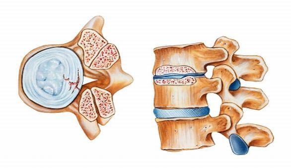 Schutz vor Osteoporose durch richtige Ernährung