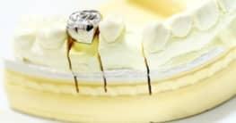Einheilung der Zahnimplantate