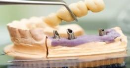 Haltbarkei von Zahnimplantaten