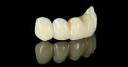 Keramik für Zahnimplantate