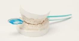 Kontraindikationen: Für wen sind Zahnimplantate nicht geeignet?