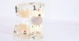 Die Kosten bei Zahnimplantaten