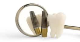 Titan für Zahnimplantate