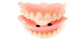 Arten von Zahnimplantaten